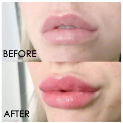 Instant Lip Plumping Serum Gloss VolumizingLip Balm
